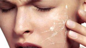 Как ухаживать за чувствительной кожей лица